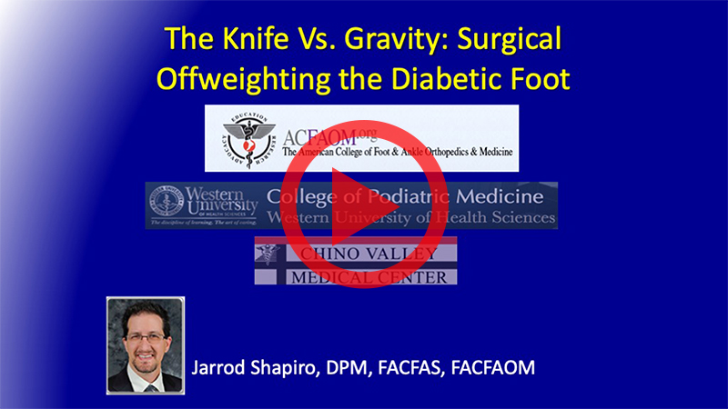 Shapiro - The Knife Vs. Gravity