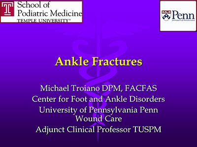 Ankle Fractures by Michael Troiano, DPM