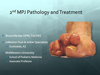 2nd MPJ Pathology and Treatment by Bruce Werber, DPM