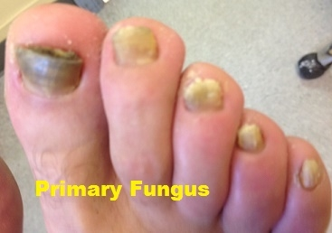 Primary Fungus Infection