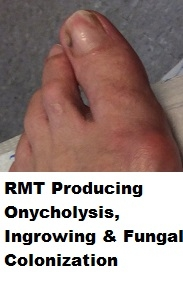 RMT causing ingrowing, incurvating and onychodystrophy