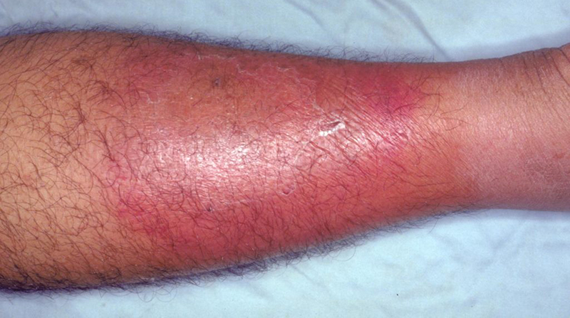 Practice Perfect 651 - The Top 10 Myths About Cellulitis