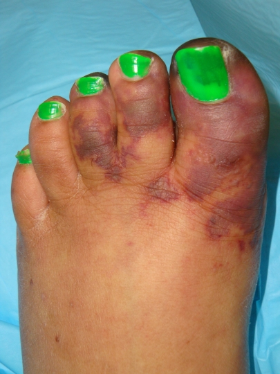Acute Vasculitis Lupus With Forefoot Ischemia And Pain